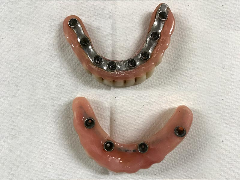 Fixed Implant Supported Over Dentures With Hybrid Bar