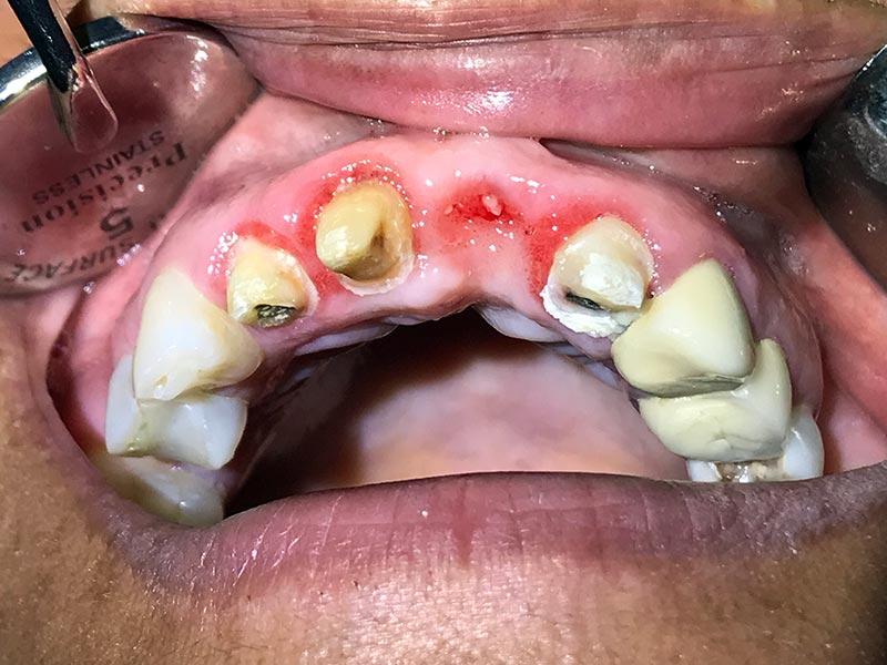 Implant Placement For Missing Tooth