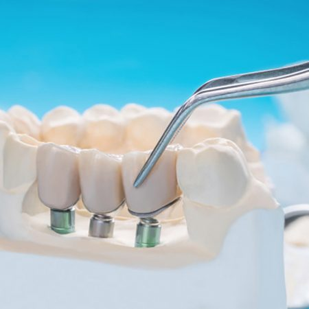 Dr. André P. Saadoun on Crown Lengthening Procedures From Conventional to Digital Approach.